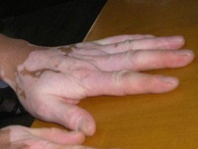 成都白癜风医院讲解肢端型白癜风难治吗