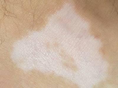 防止白癜风白斑扩散有什么方法